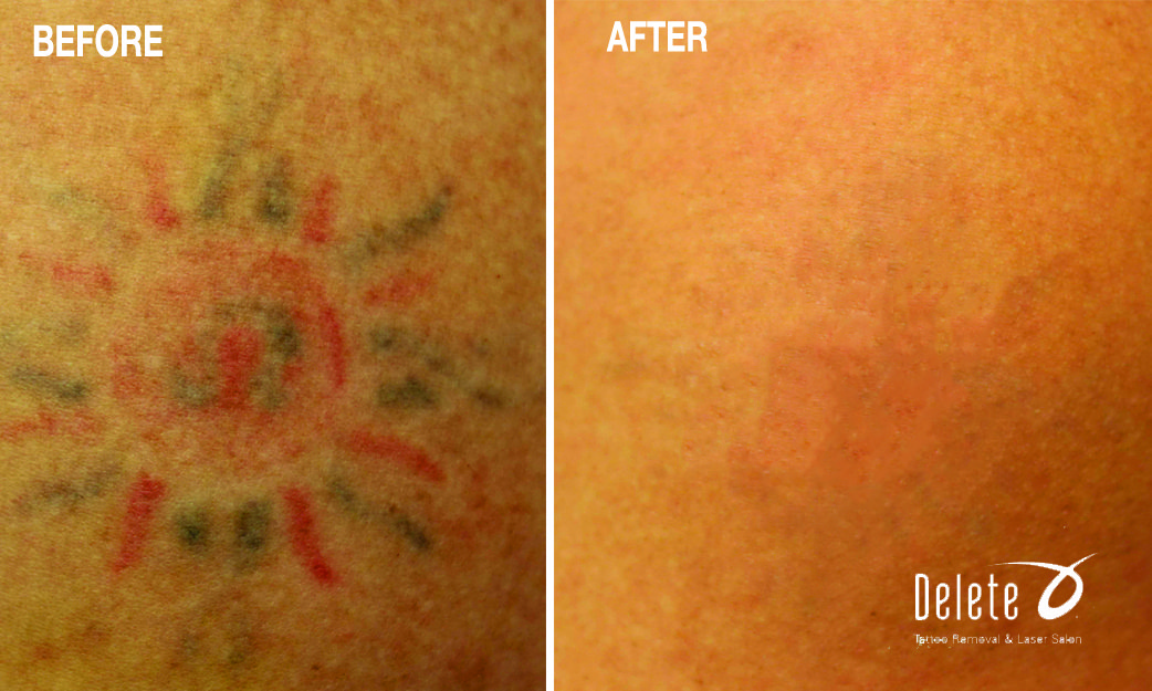 Tattoo Removal in Phoenix | Delete Tattoo Removal
