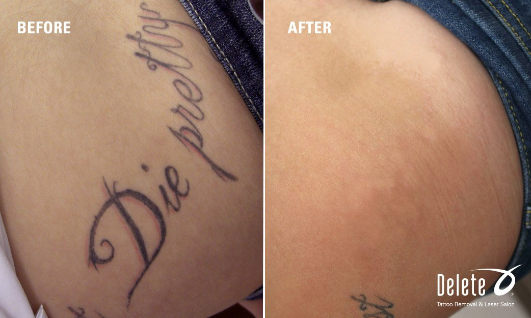 PicoWay Tattoo Removal in Phoenix | Fast Tattoo Removal