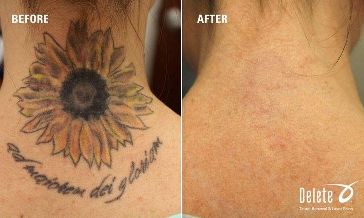 28 delete tattoo removal phoenix tattoo removal in for Tattoo removal az