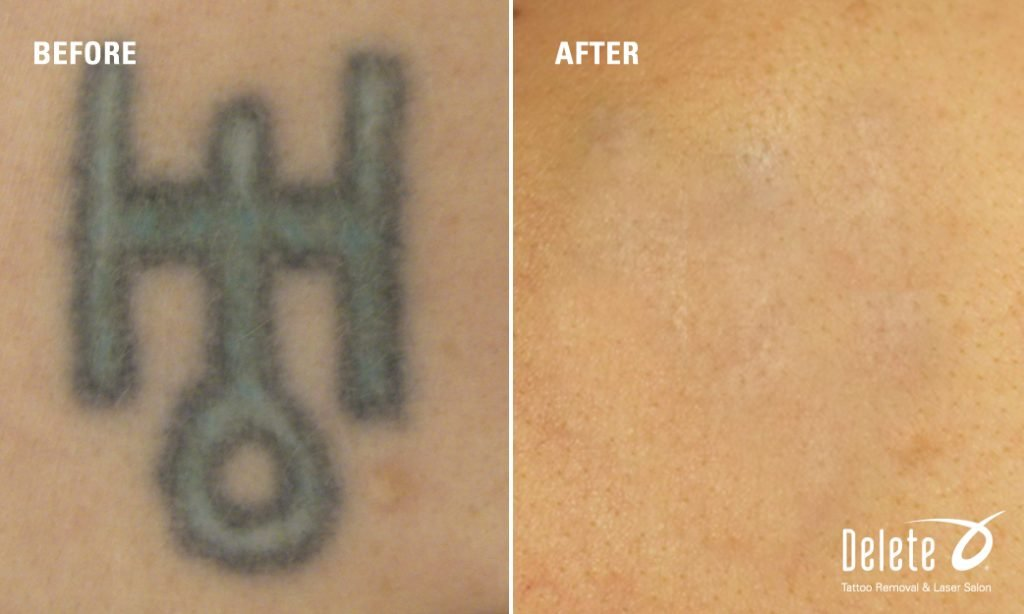 100 tattoo removal cost what you what were you for Tattoo removal nj