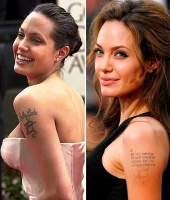 Understanding Laser Tattoo Removal Delete Tattoo Removal