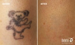 delete_photo_before_and_after_wrist_bear