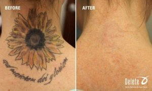 Before and after laser tattoo removal - Delete - Tattoo Removal & Laser Salon
