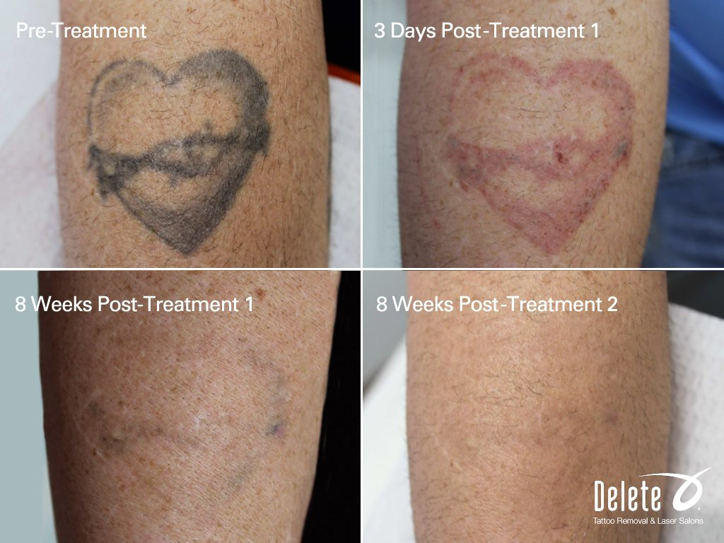 See ya later 2015 delete tattoo removal laser salon for Laser hair removal over tattoo