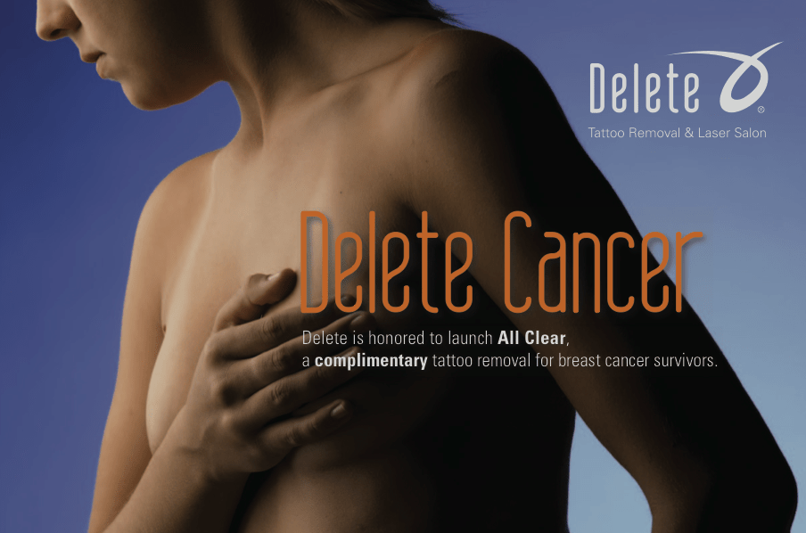 All Clear: Complimentary Radiation Tattoo Removal for Breast Cancer Survivors _ Delete - Tattoo Removal & Laser Salon