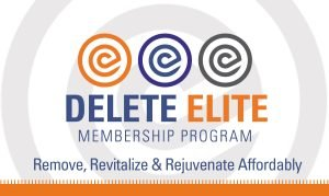 Delete Elite Membership Program