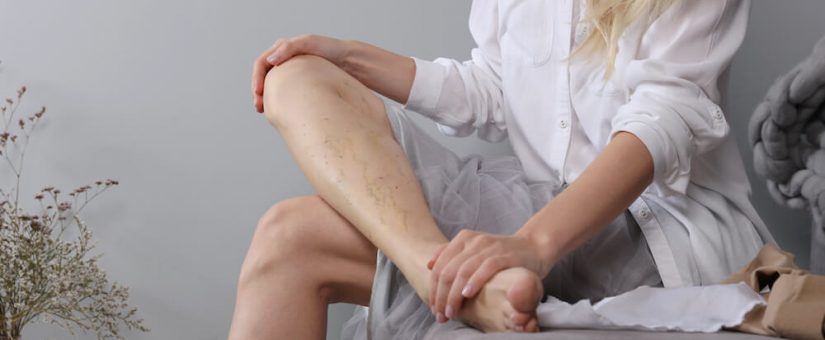 What You Should Know About Spider and Varicose Veins
